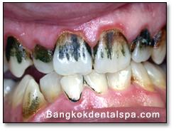 Patamsėję dantys